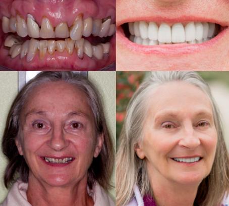 Ahn Dental Specialists: Michelle Ahn, DDS, MSD | 1444 Aviation Blvd Ste 201, Redondo Beach, CA, 90278 | +1 (310) 376-2460