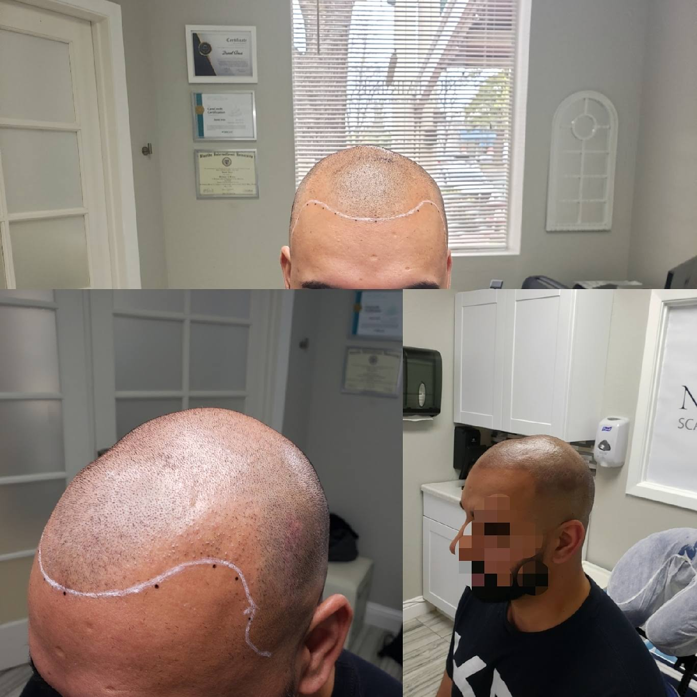 NuHair Ink Scalp MicroPigmentation & Aesthetic Clinic of Sacramento | 901 Sunrise Ave A19, Roseville, CA, 95661 | +1 (916) 800-8305