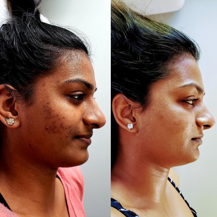 Harley True, Advanced Esthetician - Facials & skin care | 208 NW 21st Ave Ste 200, Portland, OR, 97209 | +1 (971) 201-6913